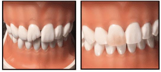 Teeth whitening from River Oak Dental in Palm Bay Fl.