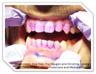 River Oak Dental attacks plaque. Visit our Palm Bay FL location to see how!