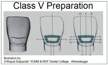 Diagram by River Oak Dental in Palm Bay Fl.