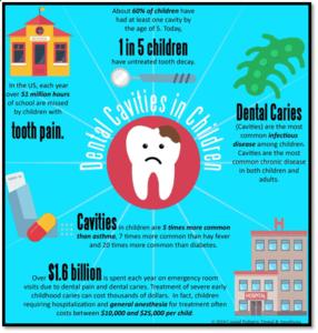 Dental Cavity graphic, info on dental health by River Oak Dental Palm Bay FL