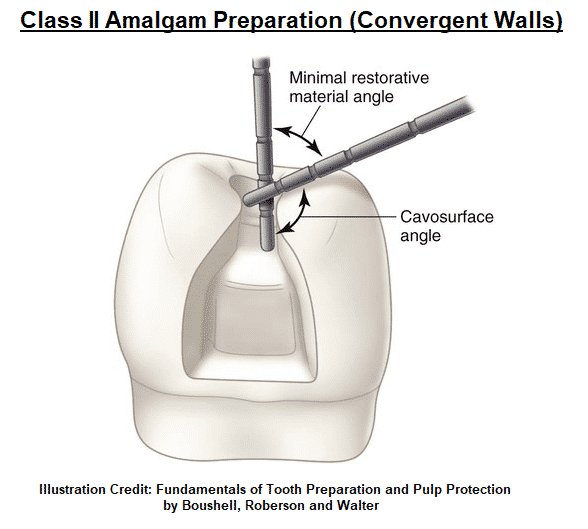 Diagram of drilling walls into a tooth by River Oak Dental in Palm Bay Fl.
