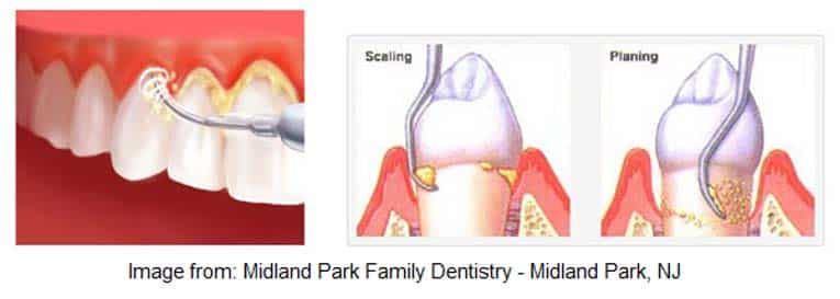River Oak Dental in Palm Bay Fl takes plaque removal seriously. Plaque removal graphic.
