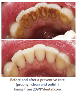 Before and after a preventive teeth care