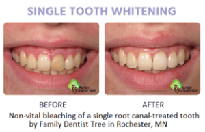 River Oak Dental Single tooth whitening