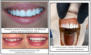 River Oak Dental Teeth cosmetic bonding