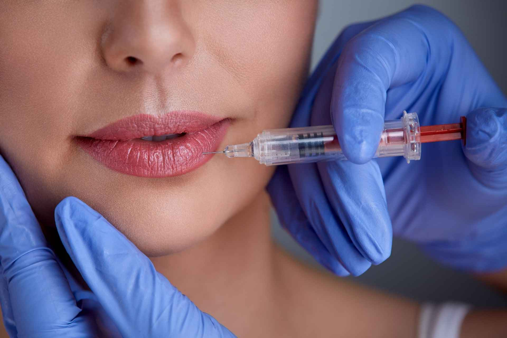 Lip Botox Injection