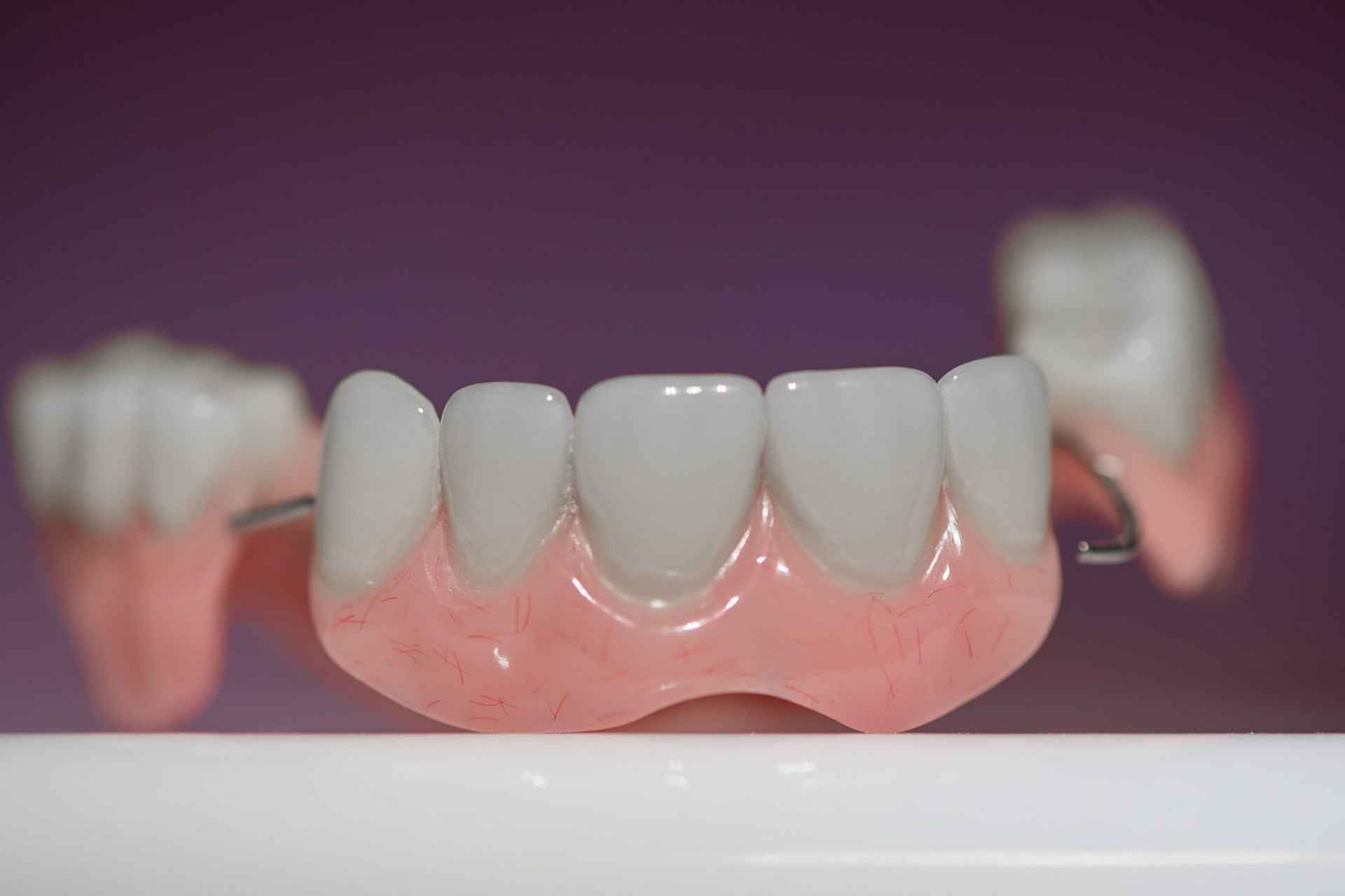 Tooth Restoration & Replacement