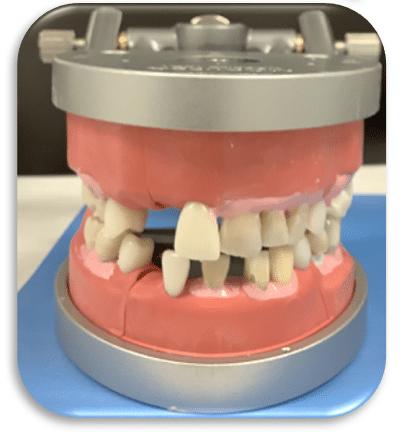 dental dentoform with missing teeth