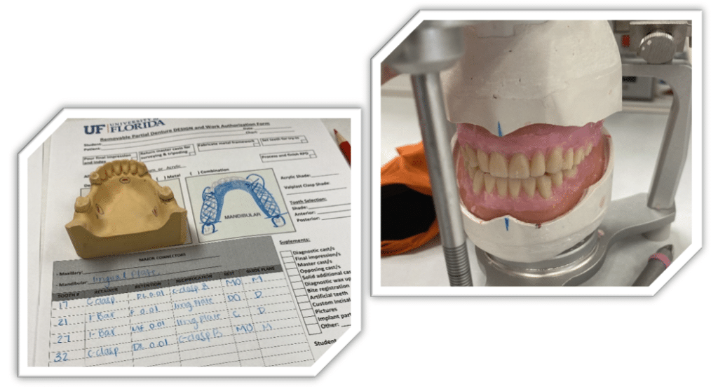 Artificial jaw mold