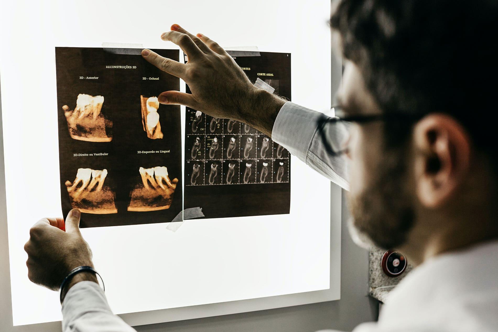 Dentist looking an xray of teeth